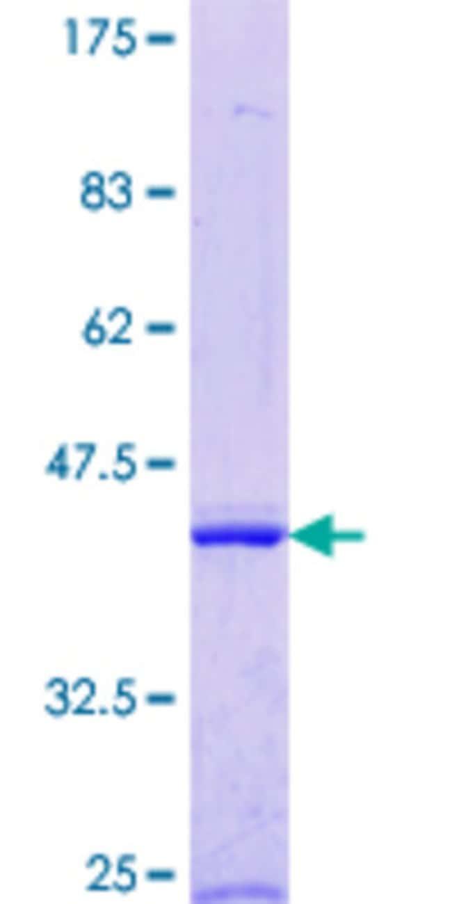 AbnovaHuman ENDOGL1 Partial ORF (NP_005098.1, 269 a.a. - 368 a.a.) Recombinant