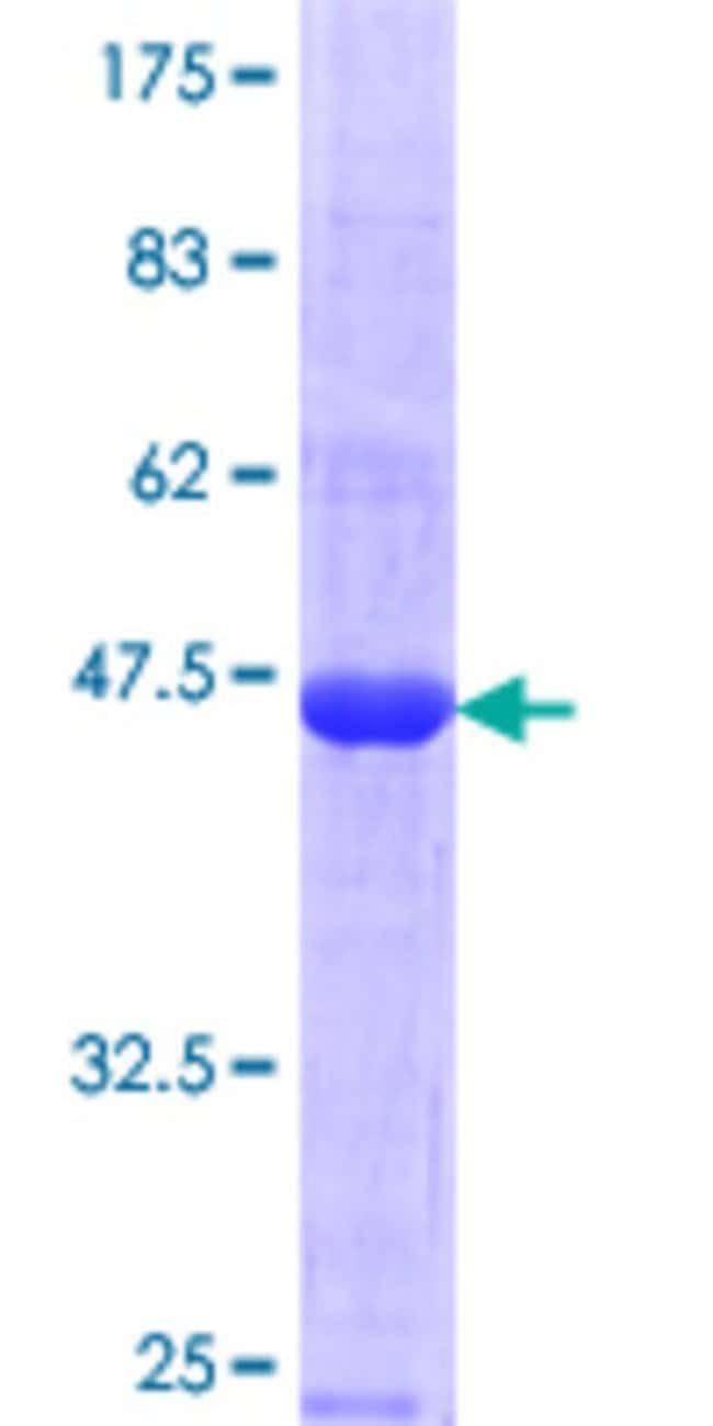 Abnova Human MAGEC1 Partial ORF (NP_005453.2, 1 a.a. - 139 a.a.) Recombinant
