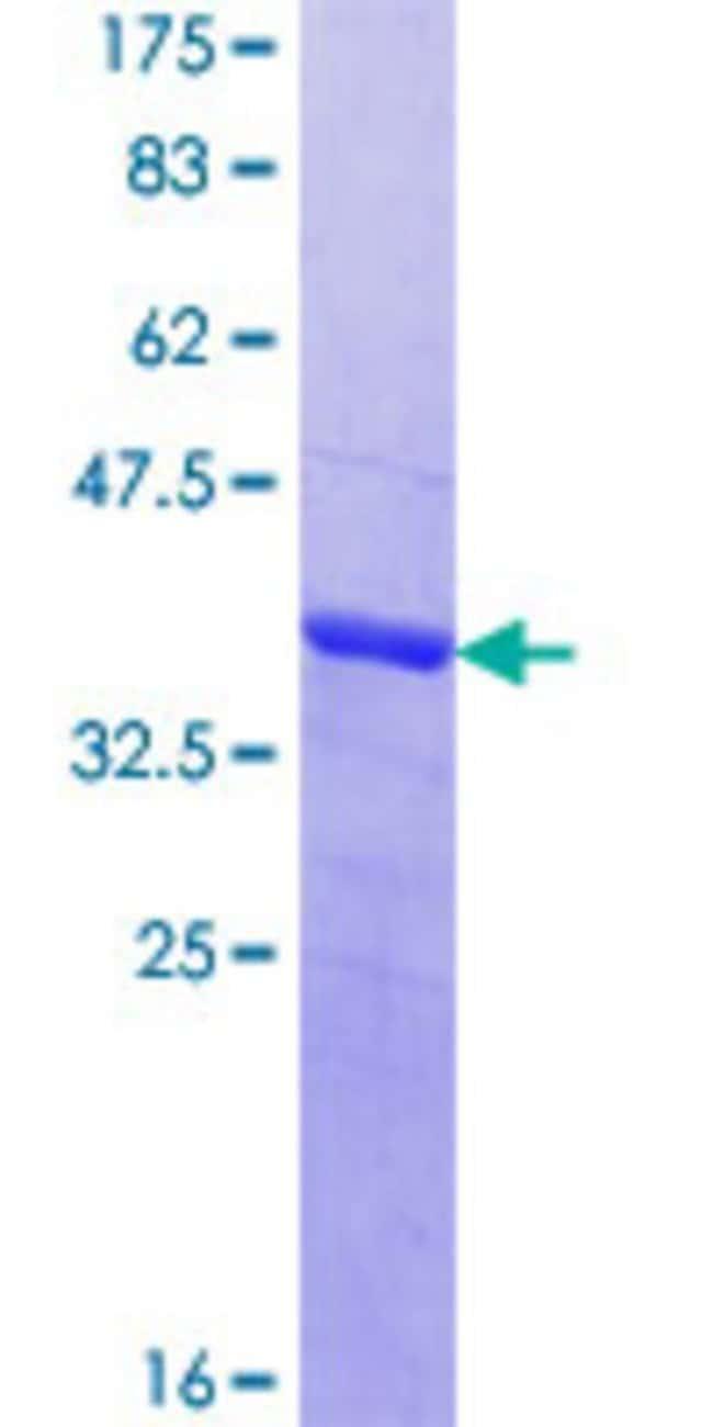 AbnovaHuman MAGEC1 Partial ORF (NP_005453.2, 848 a.a. - 918 a.a.) Recombinant
