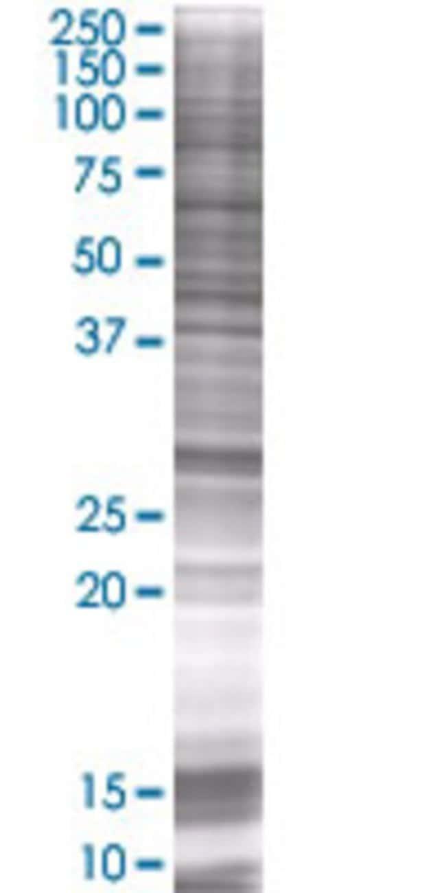 AbnovaAMMECR1 293T Cell Transient Overexpression Lysate (Denatured) 100μL:Protein