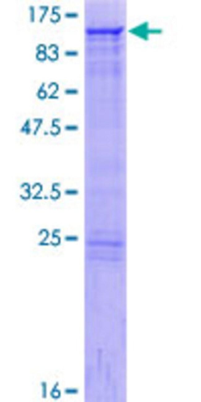 AbnovaHuman GOLGA5 Full-length ORF (NP_005104.2, 1 a.a. - 731 a.a.) Recombinant