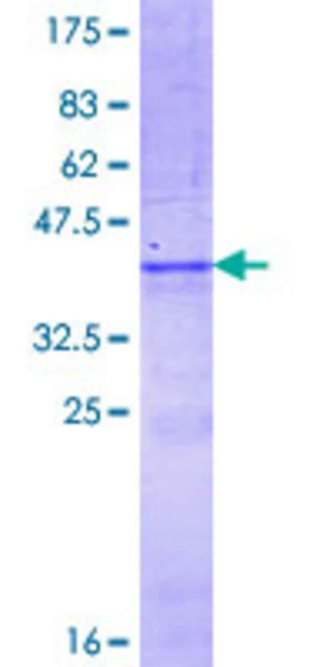 Abnova™ Human HS3ST4 Partial ORF (NP_006031.1, 358 a.a. - 455 a.a.) Recombinant Protein with GST-tag at N-terminal 25μg Abnova™ Human HS3ST4 Partial ORF (NP_006031.1, 358 a.a. - 455 a.a.) Recombinant Protein with GST-tag at N-terminal
