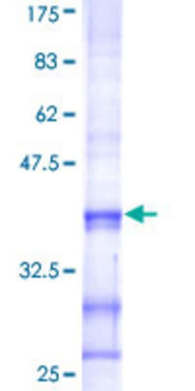 Abnova Human HS3ST3A1 Partial ORF (NP_006033, 308 a.a. - 406 a.a.) Recombinant
