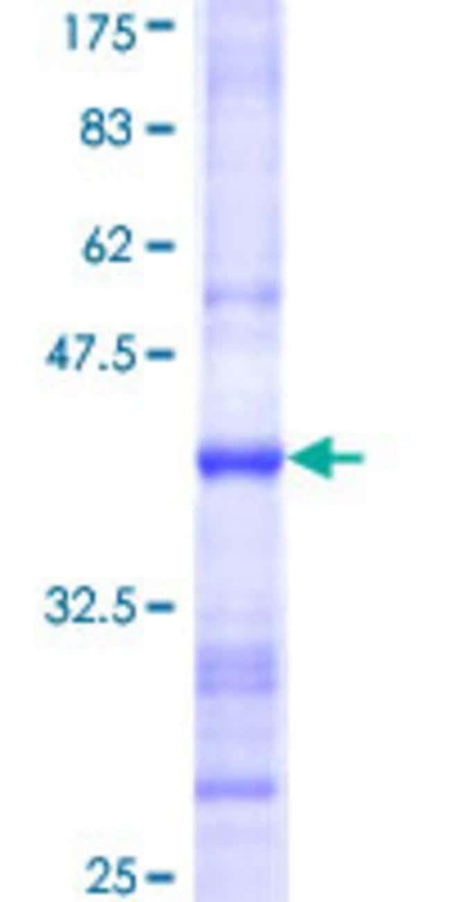 AbnovaHuman HS3ST2 Partial ORF (NP_006034, 268 a.a. - 367 a.a.) Recombinant