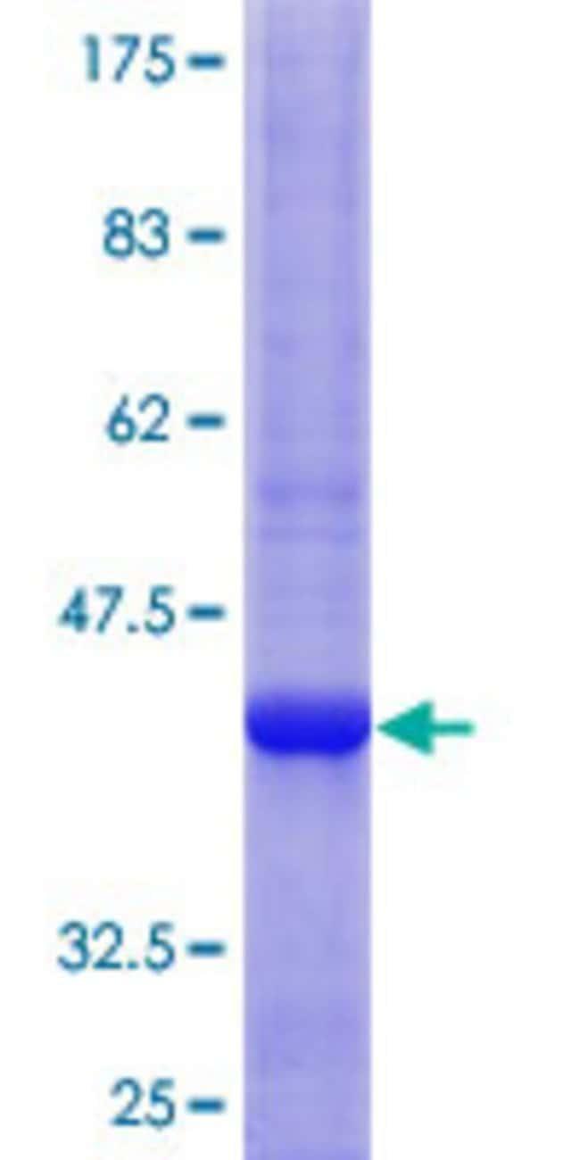 AbnovaHuman HS3ST1 Partial ORF (NP_005105.1, 111 a.a. - 210 a.a.) Recombinant