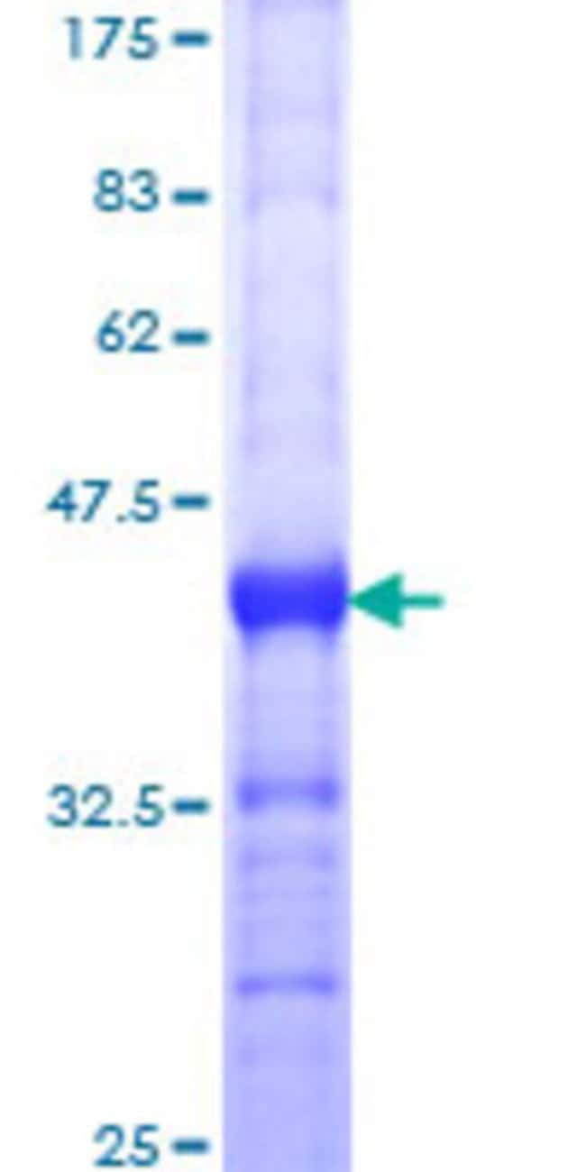 AbnovaHuman MED12 Partial ORF (NP_005111, 1829 a.a. - 1941 a.a.) Recombinant