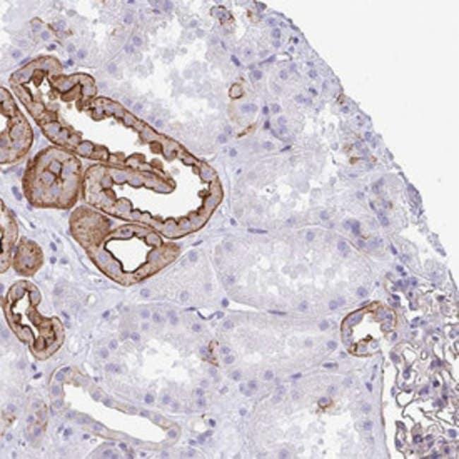 DBN1 Rabbit anti-Human, Polyclonal , Abnova 100μL; Unlabeled:Antibodies