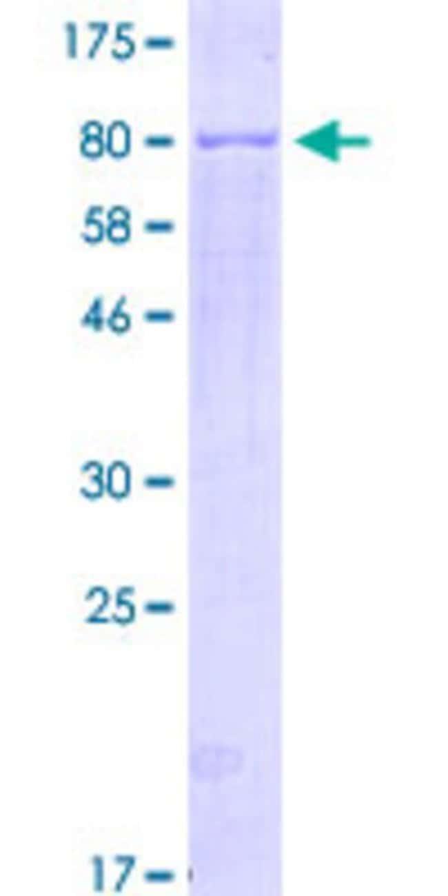 AbnovaHuman NR1H4 Full-length ORF (ADR83011.1, 1 a.a. - 476 a.a.) Recombinant