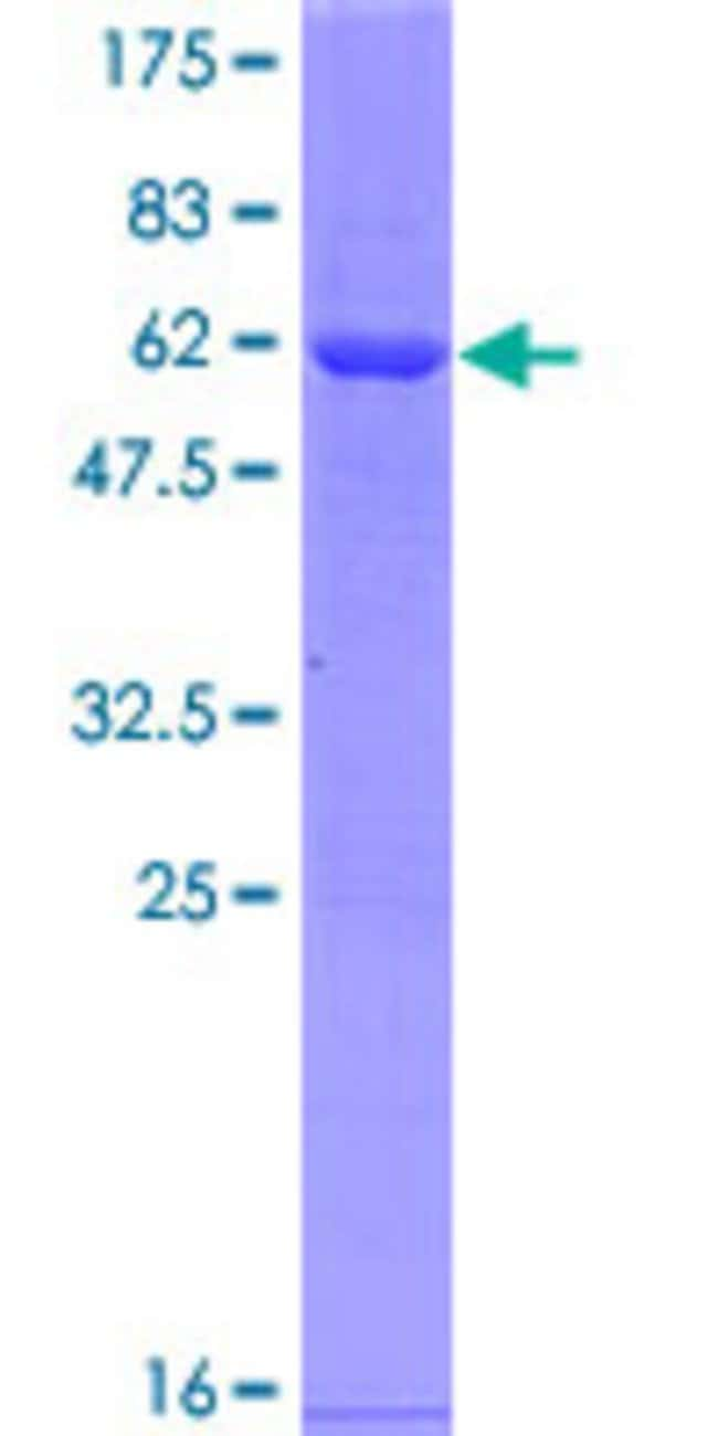 AbnovaHuman CCS Full-length ORF (NP_005116.1, 1 a.a. - 274 a.a.) Recombinant