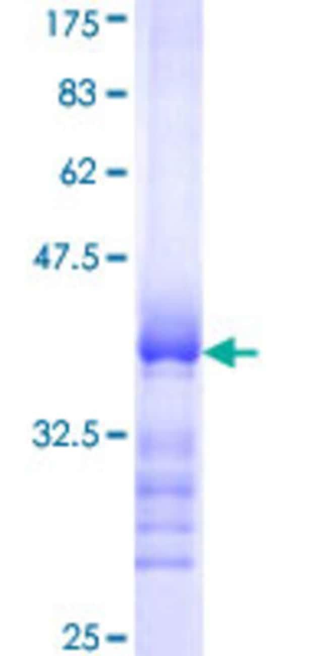 AbnovaHuman CCS Partial ORF (NP_005116, 175 a.a. - 274 a.a.) Recombinant
