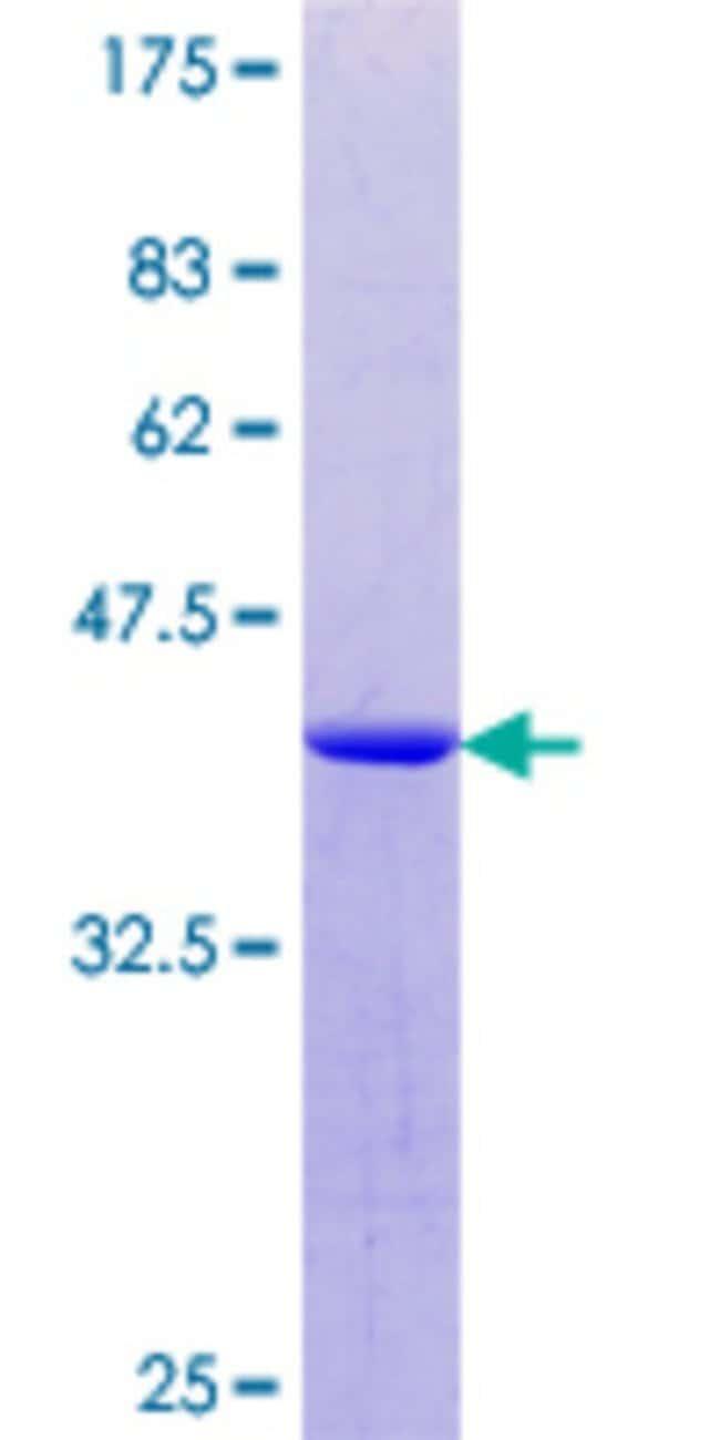 AbnovaHuman THOC1 Partial ORF (NP_005122.1, 560 a.a. - 657 a.a.) Recombinant