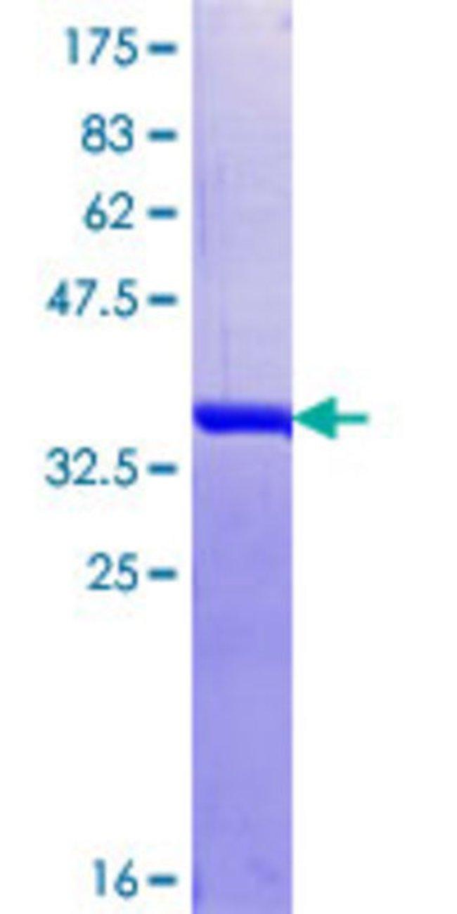 AbnovaHuman HNRPDL Partial ORF (NP_005454.1, 301 a.a. - 409 a.a.) Recombinant