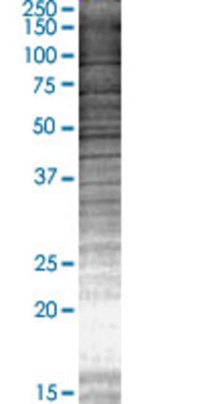 Abnova KCNE2 293T Cell Transient Overexpression Lysate (Denatured) 100µL:Life
