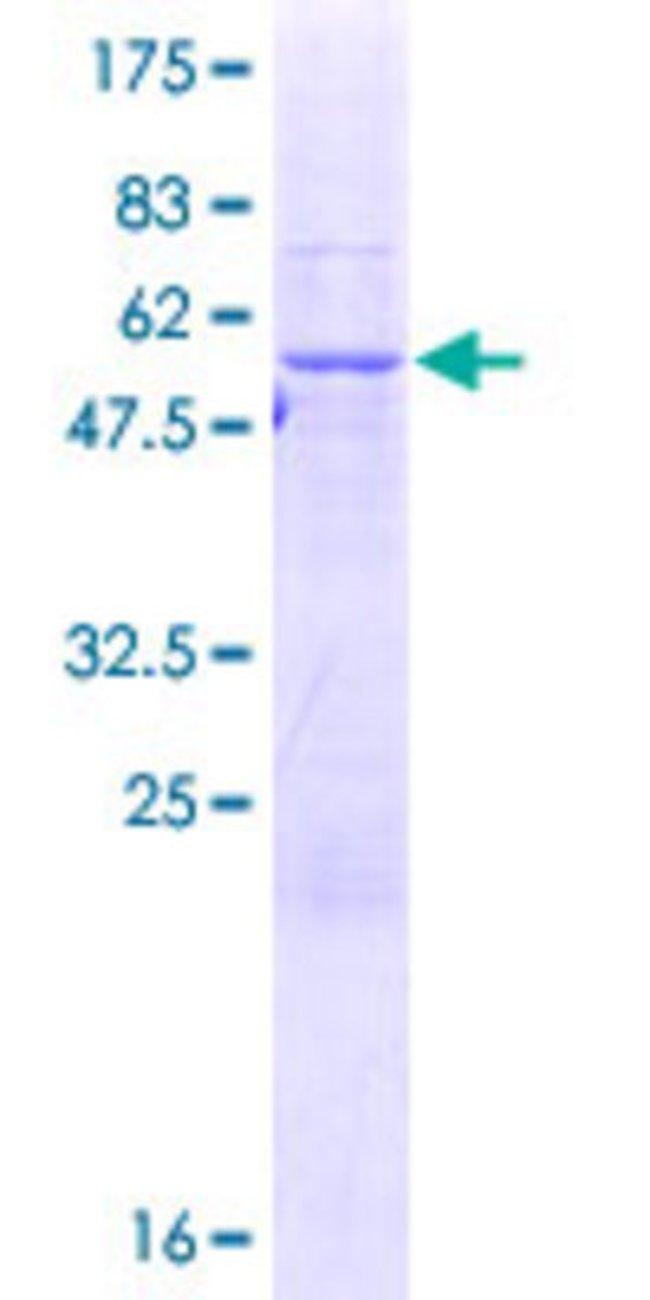AbnovaHuman SCO2 Full-length ORF (NP_005129.1, 1 a.a. - 266 a.a.) Recombinant