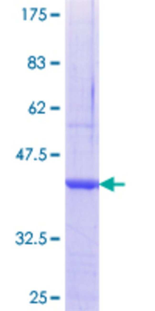 AbnovaHuman SCO2 Partial ORF (NP_005129.1, 167 a.a. - 266 a.a.) Recombinant