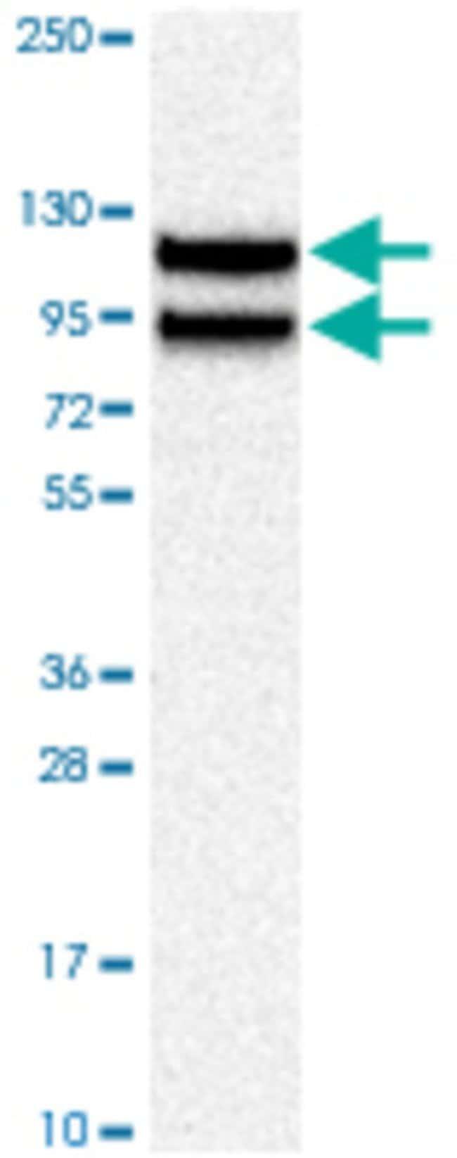 LIMA1 Rabbit anti-Human, Polyclonal , Abnova 100μL; Unlabeled:Antibodies