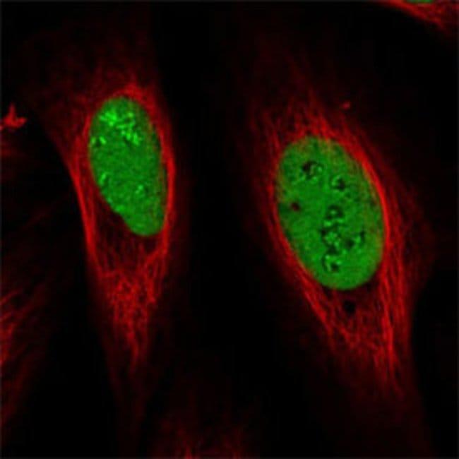 GAR1 Rabbit anti-Human, Polyclonal , Abnova 100μL; Unlabeled:Antibodies