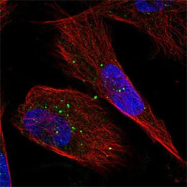GFPT2 Rabbit anti-Human, Polyclonal , Abnova 100μL; Unlabeled:Antibodies