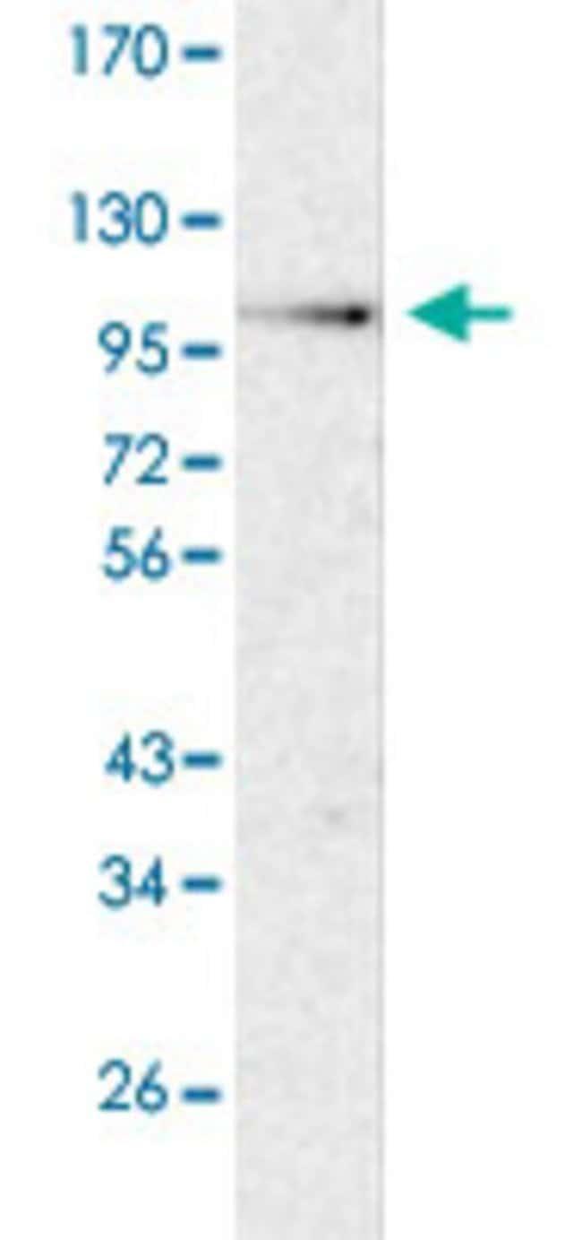 COPB1 Rabbit anti-Human, Polyclonal , Abnova 100μL; Unlabeled:Antibodies