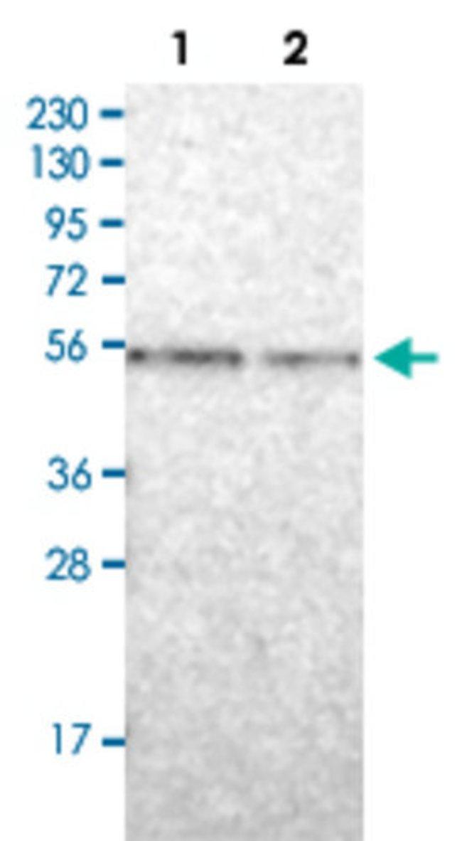 ENTPD1 Rabbit anti-Human, Polyclonal , Abnova 100μL; Unlabeled:Antibodies