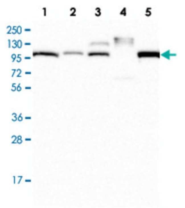 APOB Rabbit anti-Human, Polyclonal , Abnova 100μL; Unlabeled:Antibodies