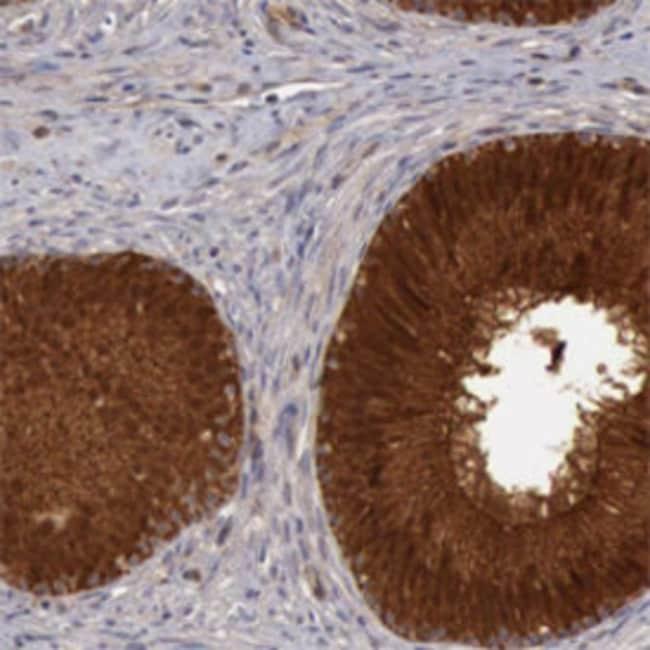 BMX Rabbit anti-Human, Polyclonal , Abnova 100μL; Unlabeled:Antibodies