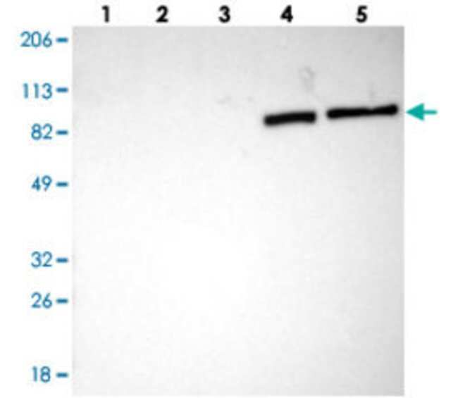 TF Rabbit anti-Human, Polyclonal , Abnova 100μL; Unlabeled:Antibodies