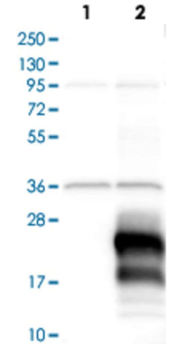 BIRC5 Rabbit anti-Human, Polyclonal , Abnova 100μL; Unlabeled:Antibodies