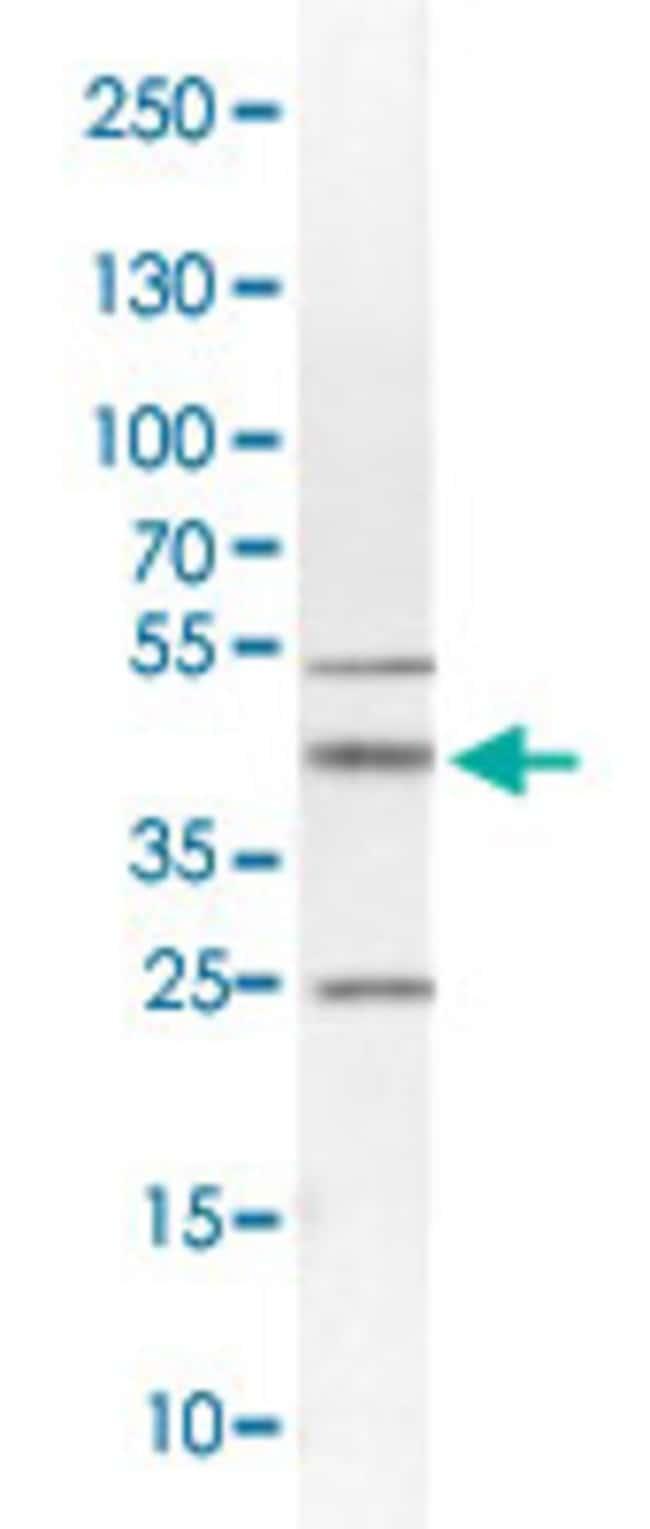 SYP Rabbit anti-Human, Polyclonal , Abnova 100μL; Unlabeled:Antibodies