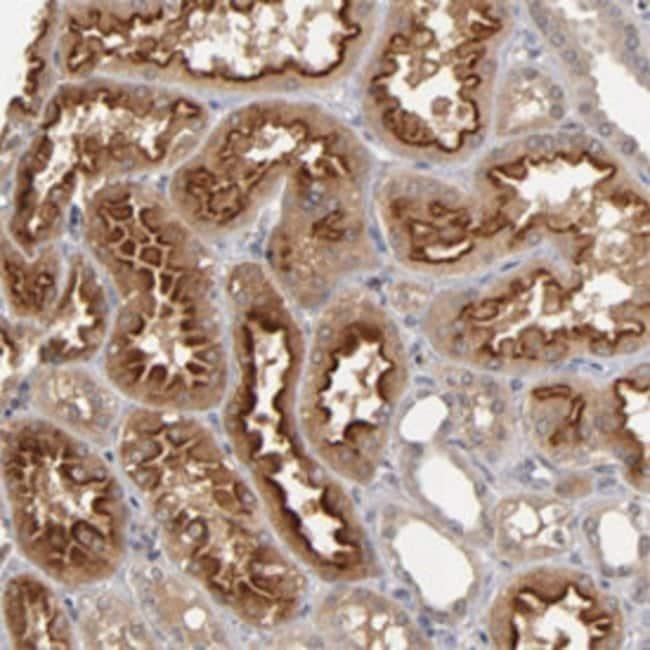 ASB8 Rabbit anti-Human, Mouse, Rat, Polyclonal , Abnova 100μL; Unlabeled:Antibodies
