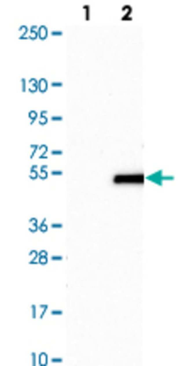 VSX2 Rabbit anti-Human, Polyclonal , Abnova 100μL; Unlabeled:Antibodies