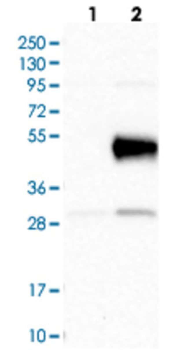 CD38 Rabbit anti-Human, Polyclonal Antibody, Abnova 100μL; Unlabeled:Antibodies