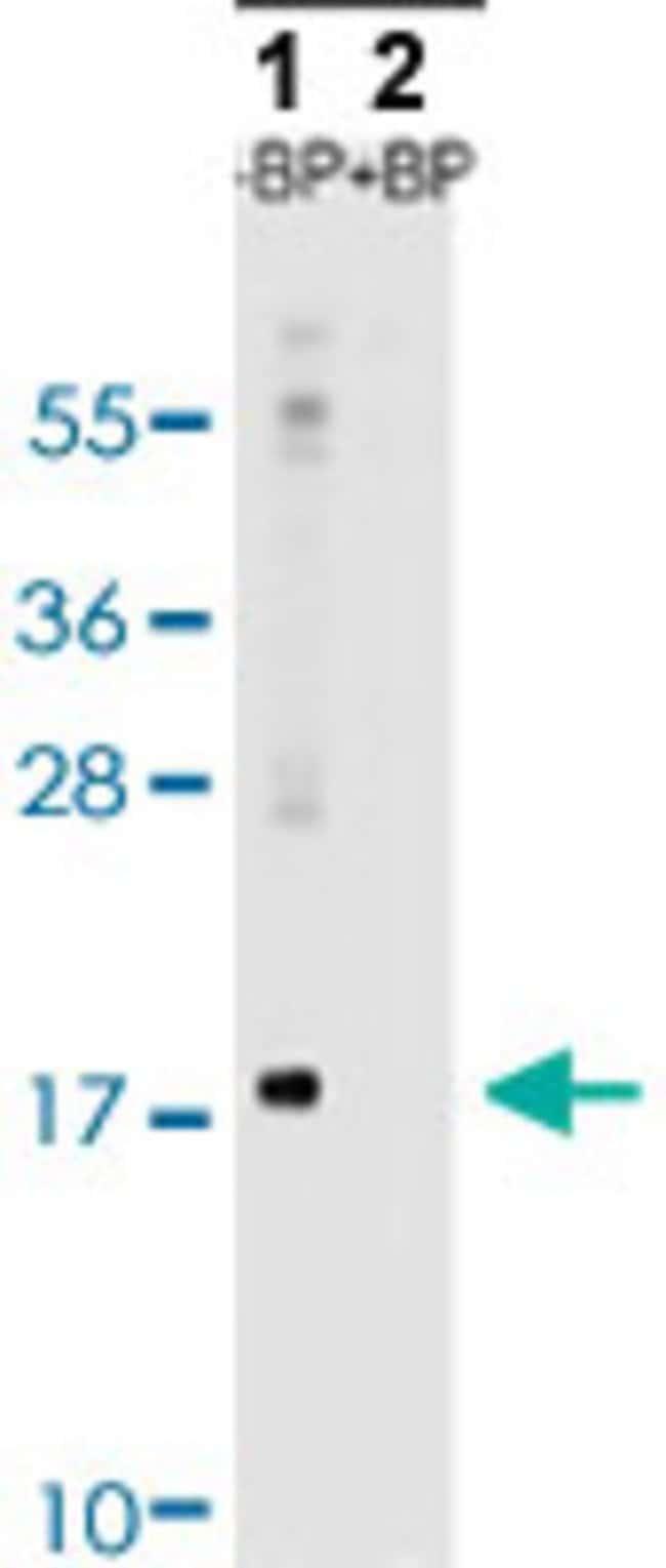 MAP1LC3A Rabbit anti-Human, Mouse, Rat, Polyclonal , Abnova 400μL; Unlabeled:Antibodies