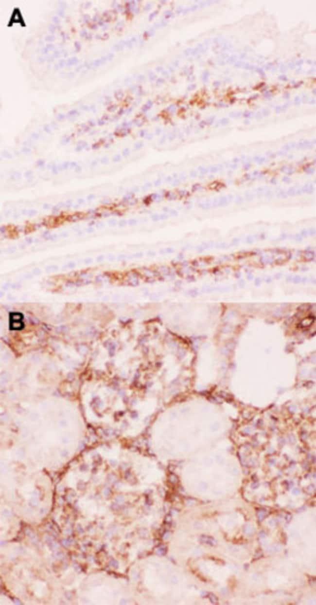 ABCB1 Rabbit anti-Human, Mouse, Rat, Polyclonal , Abnova 100μg; Unlabeled:Antibodies