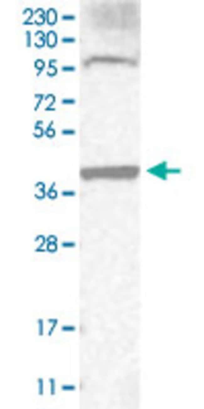 CD34 Rabbit anti-Human, Polyclonal Antibody, Abnova 100μL; Unlabeled:Antibodies