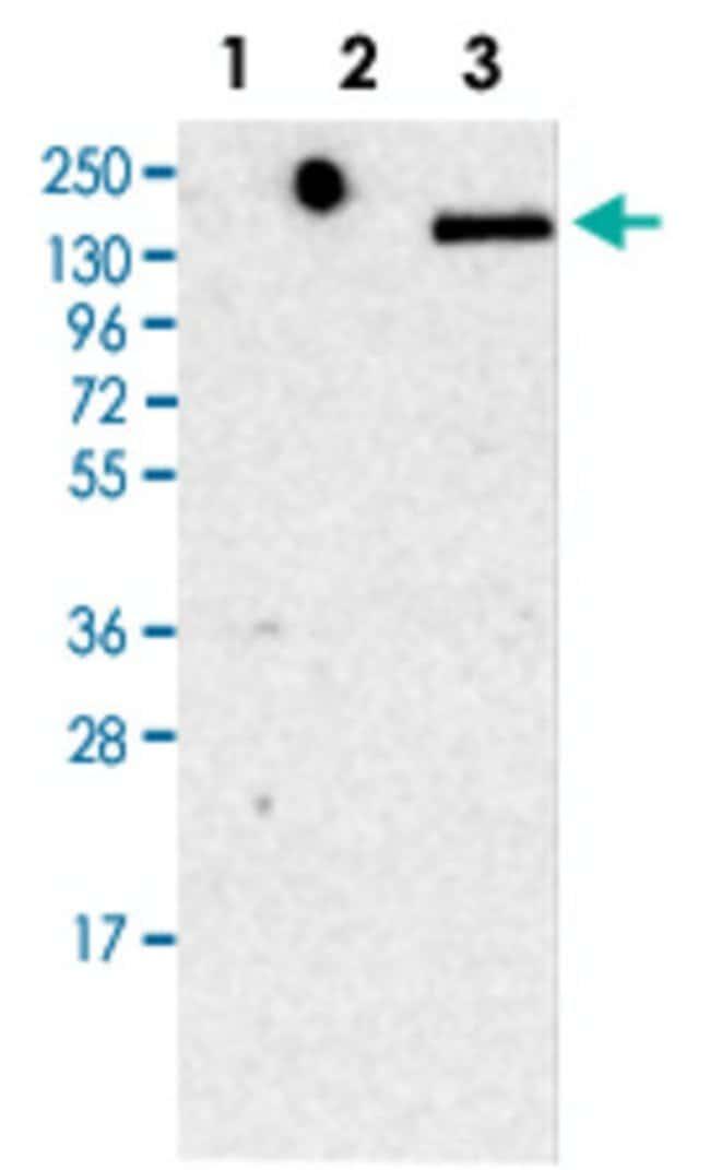 LY75 Rabbit anti-Human, Polyclonal , Abnova 100μL; Unlabeled:Antibodies