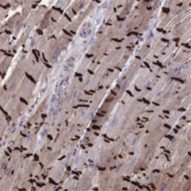 CDH2 Rabbit anti-Human, Polyclonal , Abnova 100μL; Unlabeled:Antibodies