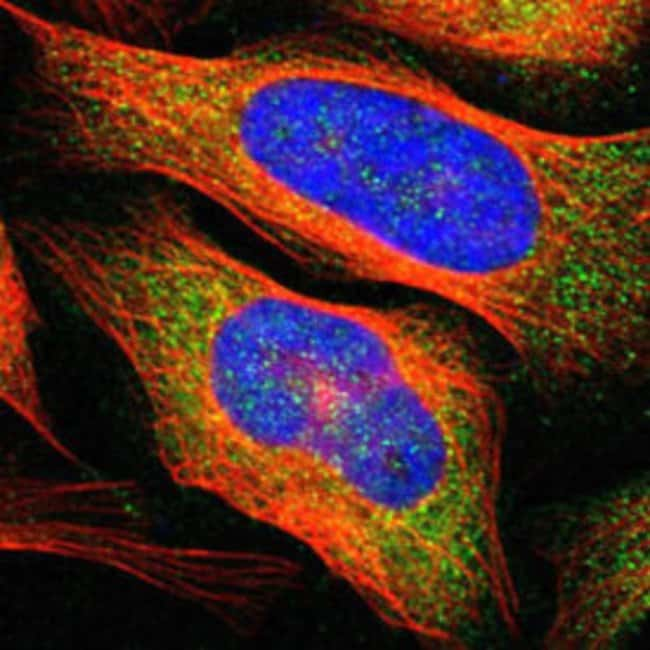 ADAM17 Rabbit anti-Human, Polyclonal , Abnova 100μL; Unlabeled:Antibodies