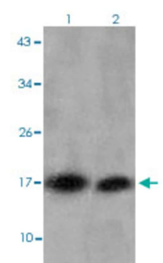 HIST1H3D (trimethyl-K27) Rabbit anti-Human, Mouse, Rabbit, Polyclonal ,