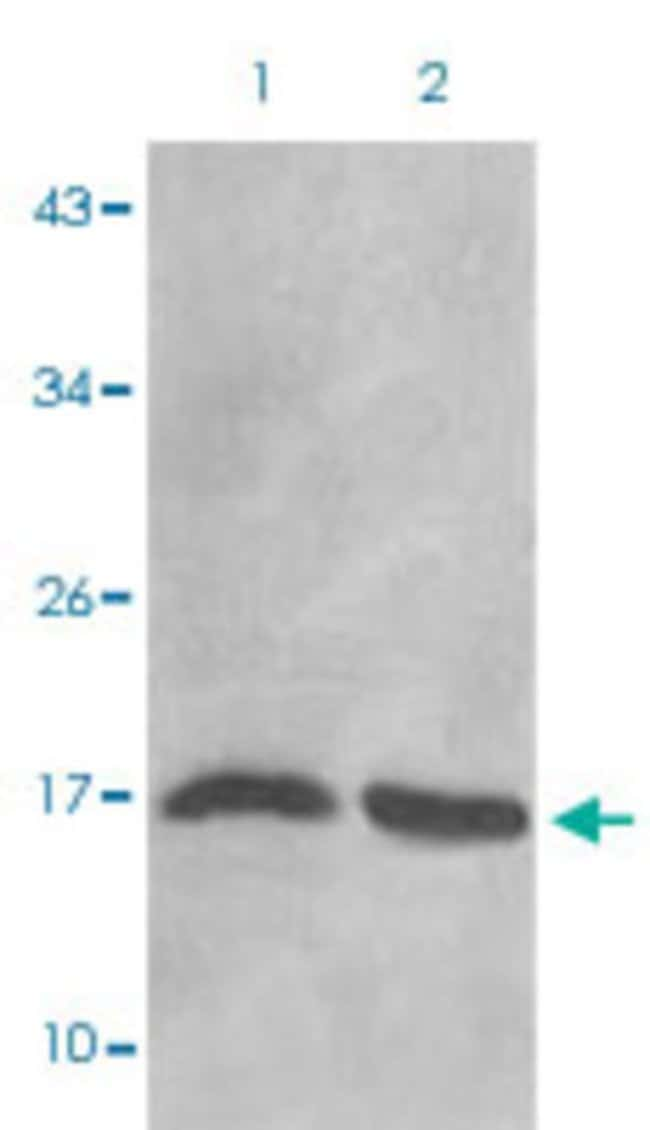 HIST1H3D (dimethyl-K27) Rabbit anti-Human, Mouse, Rabbit, Polyclonal ,