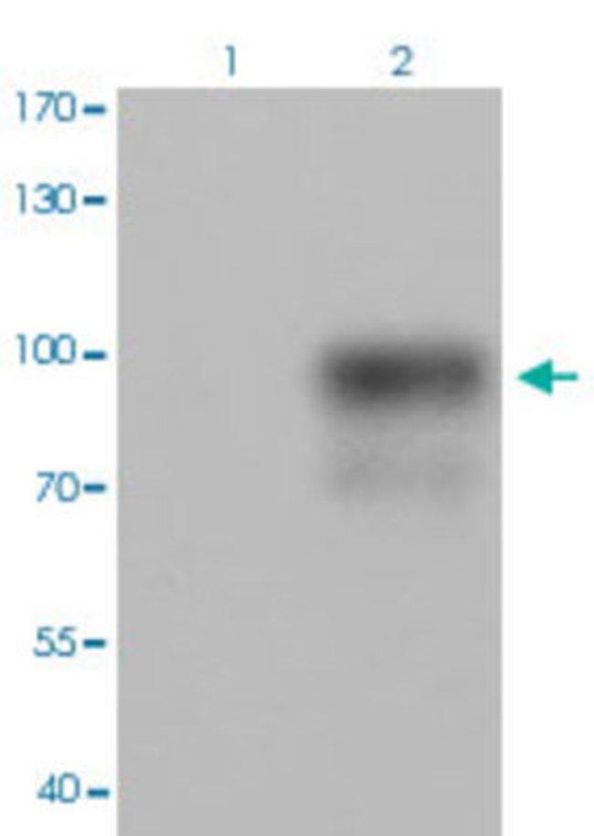 CTNNB1 (phospho S715) Rabbit anti-Human, Mouse, Rabbit, Polyclonal , Abnova