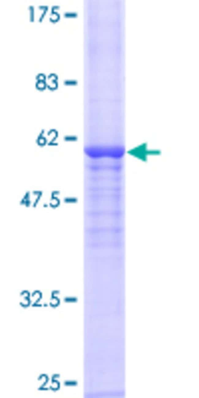 Abnova™ Human NAT2 Full-length ORF (AAH15878.1, 1 a.a. - 290 a.a.) Recombinant Protein MW: 57.42kDa with GST-tag at N-terminal 10μg Abnova™ Human NAT2 Full-length ORF (AAH15878.1, 1 a.a. - 290 a.a.) Recombinant Protein MW: 57.42kDa with GST-tag at N-terminal