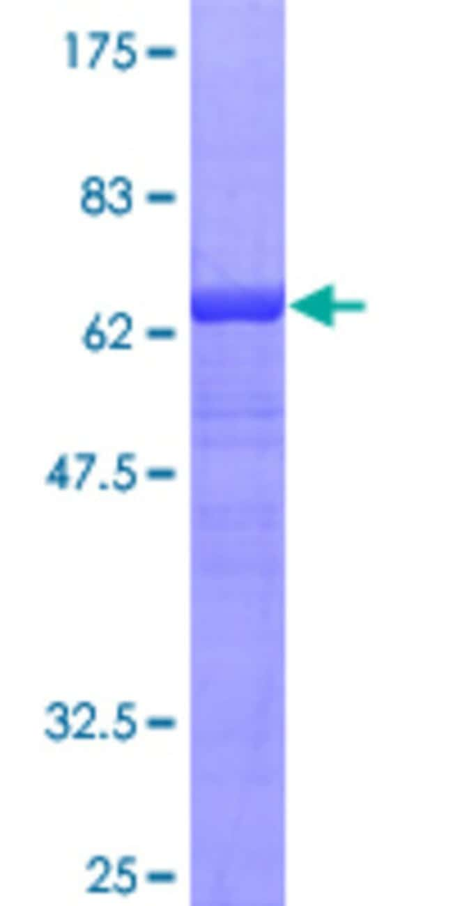 Abnova™ Human SERPINA3 Full-length ORF (AAH10530, 1 a.a. - 423 a.a.) Recombinant Protein with GST-tag at N-terminal 25μg Abnova™ Human SERPINA3 Full-length ORF (AAH10530, 1 a.a. - 423 a.a.) Recombinant Protein with GST-tag at N-terminal