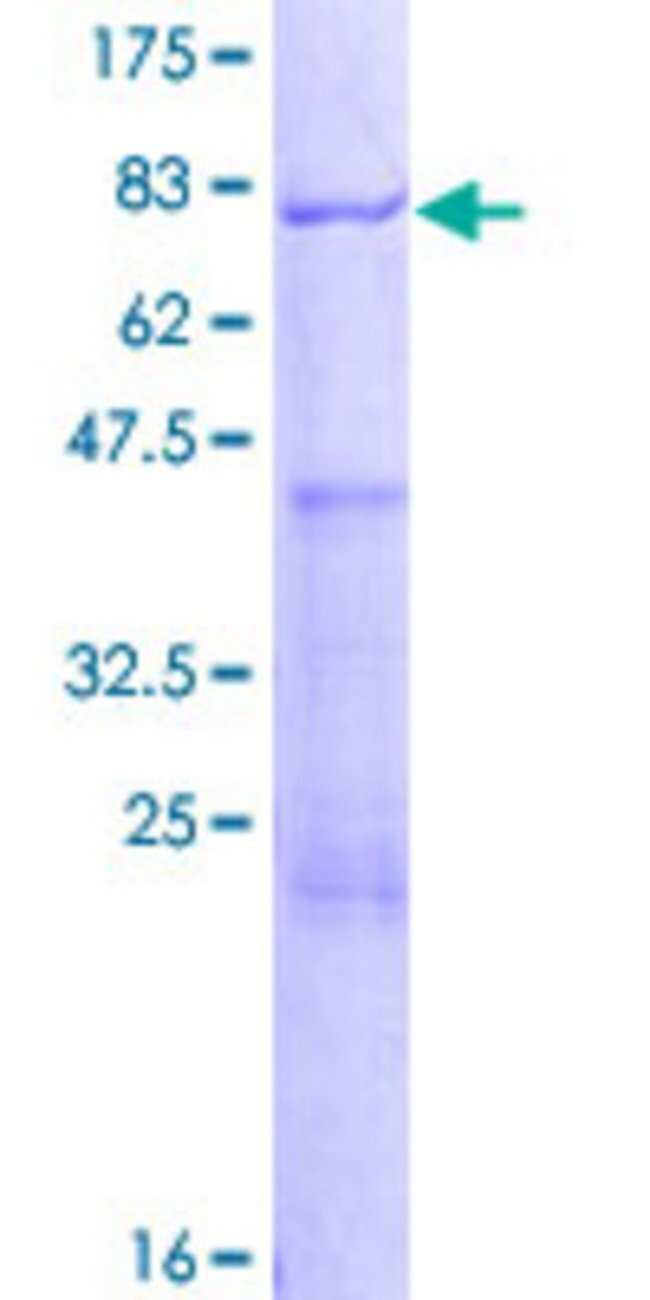 AbnovaHuman AAMP Full-length ORF (NP_001078.2, 1 a.a. - 434 a.a.) Recombinant
