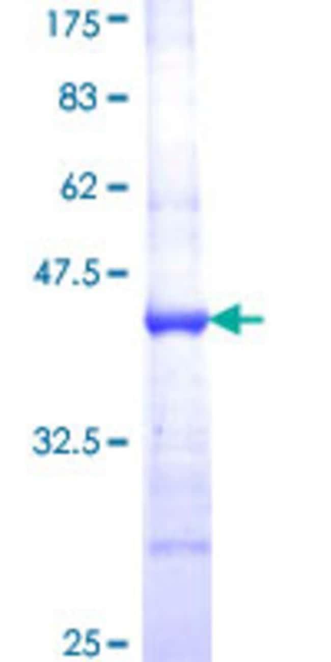 AbnovaHuman ABCF1 Partial ORF (NP_001081, 642 a.a. - 739 a.a.) Recombinant