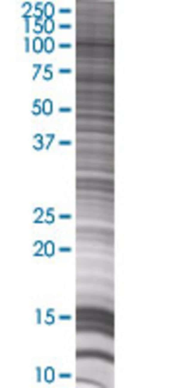 AbnovaABCF1 293T Cell Transient Overexpression Lysate (Denatured) 100μL:Protein