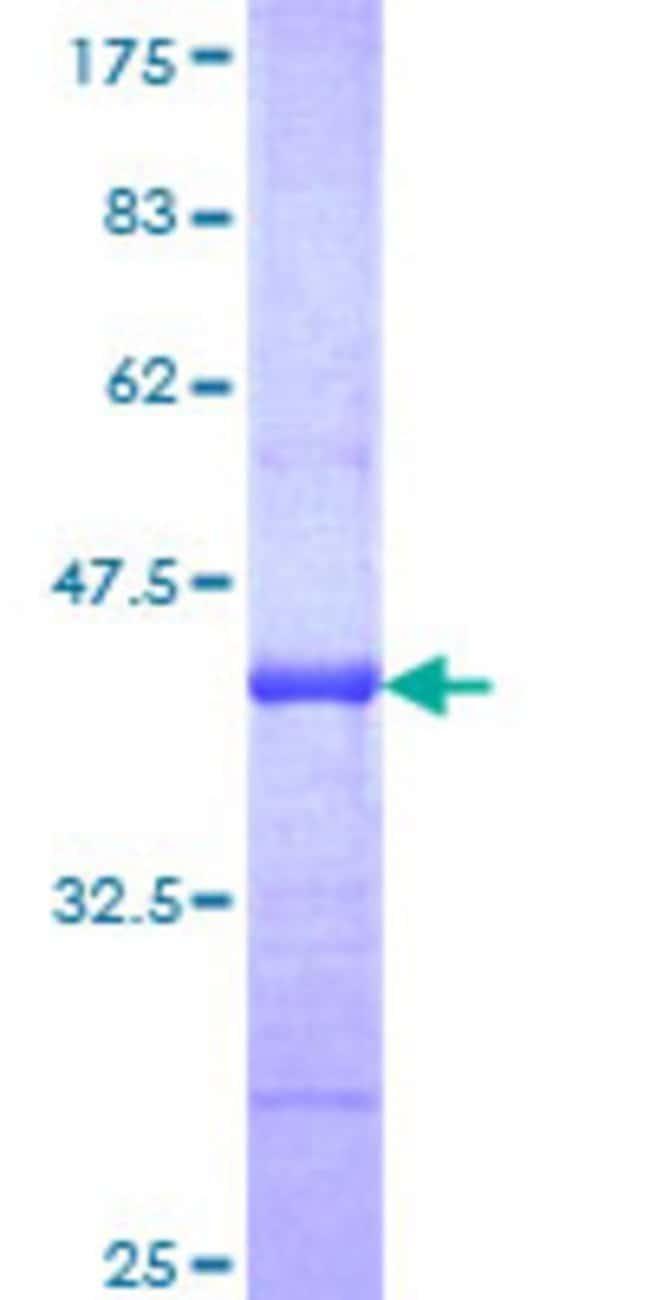 AbnovaHuman ABCA4 Partial ORF (NP_000341, 2174 a.a. - 2273 a.a.) Recombinant