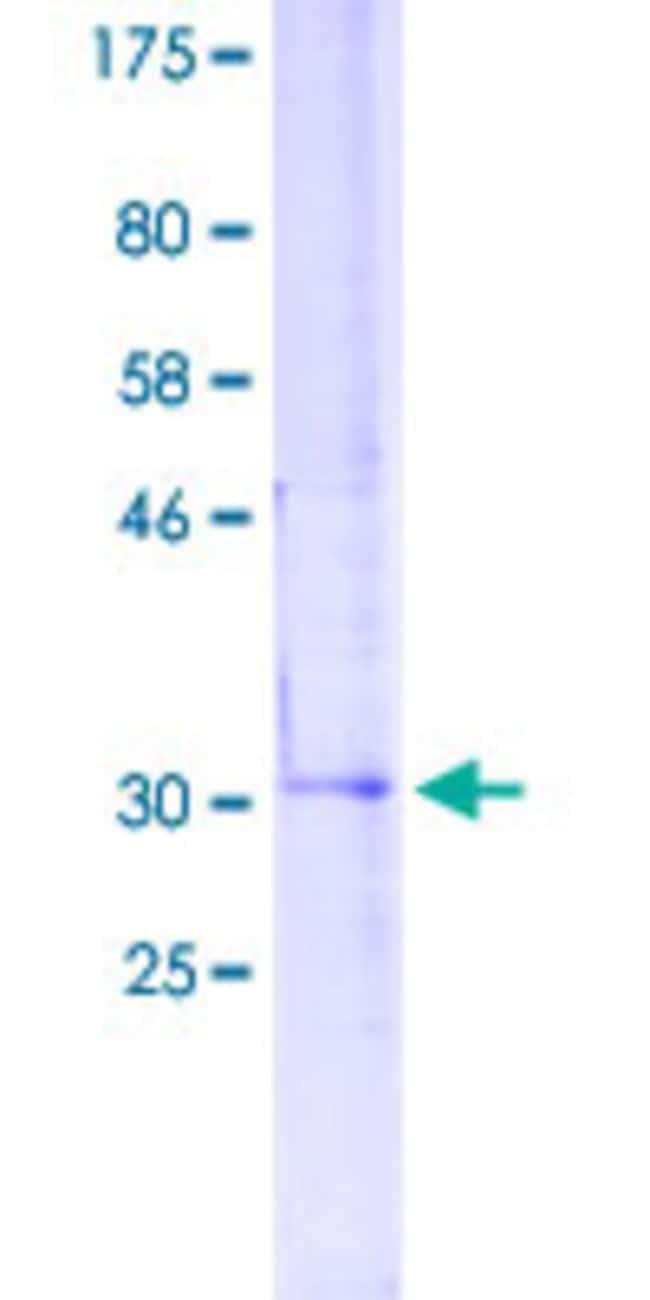 AbnovaHuman ABL1 Partial ORF (NP_005148.2, 931 a.a. - 1030 a.a.) Recombinant