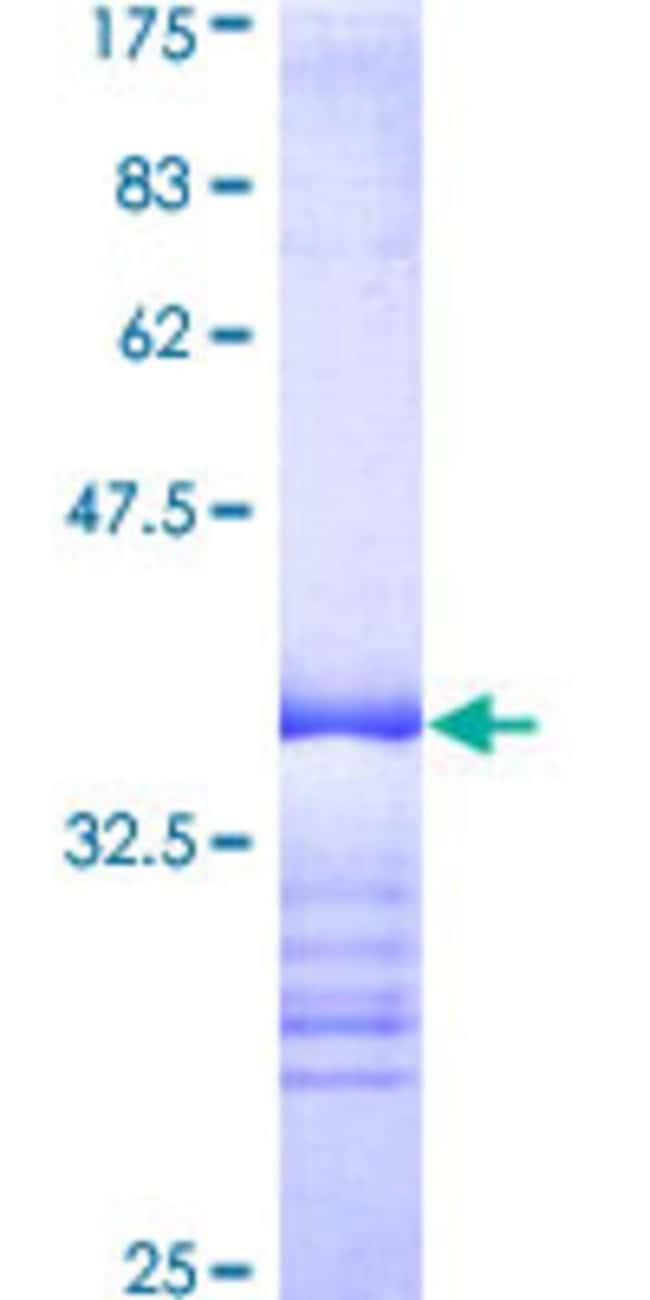 AbnovaHuman ABL2 Partial ORF (AAH65912, 743 a.a. - 842 a.a.) Recombinant