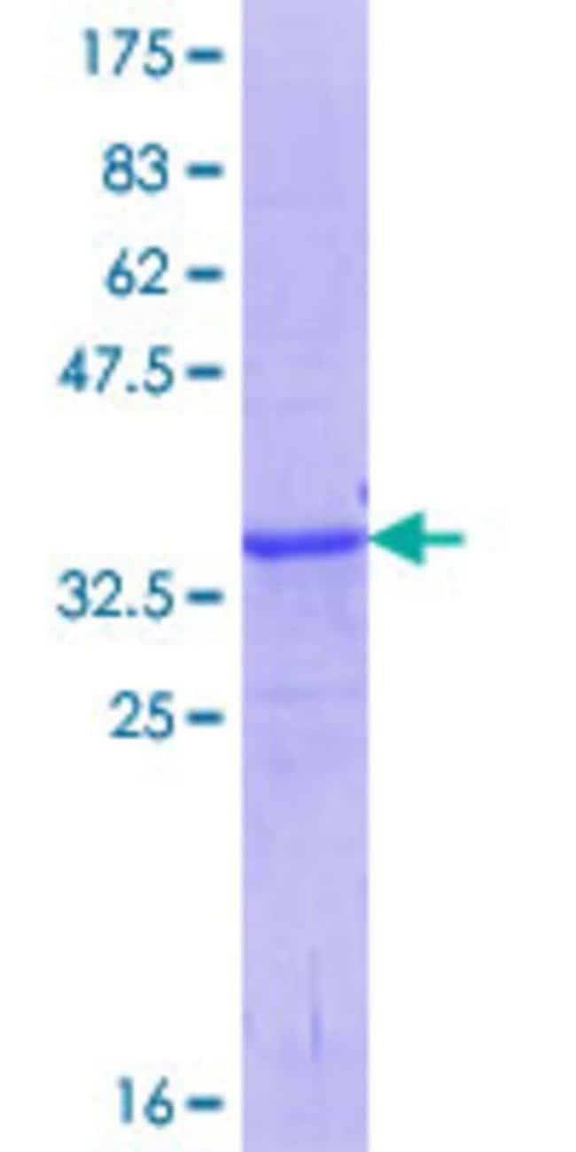 AbnovaHuman ABO Partial ORF (NP_065202.2, 273 a.a. - 354 a.a.) Recombinant
